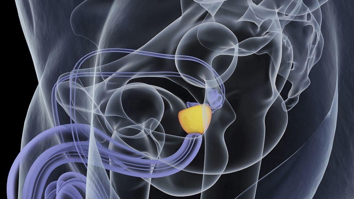 como revisar próstata