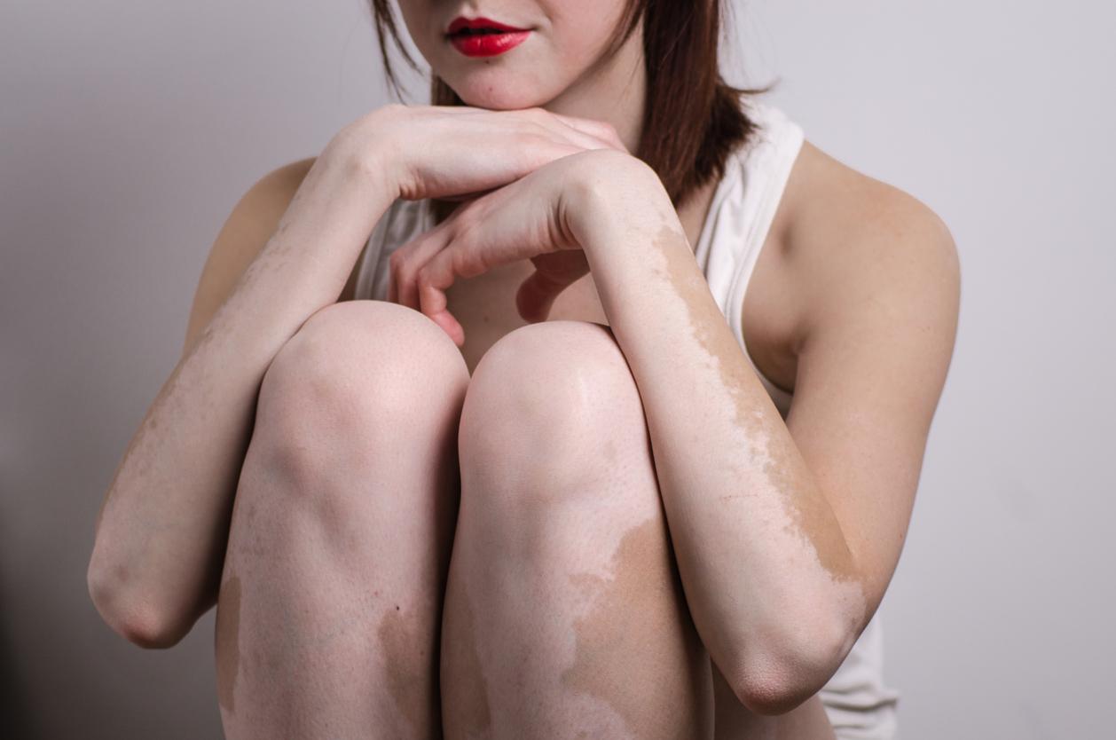 cuales son las causas de las manchas en la piel