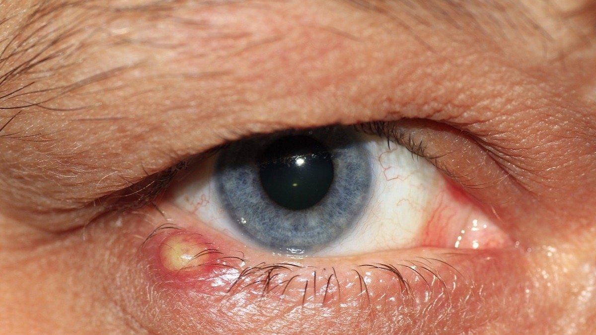 como aliviar un orzuelo en el ojo