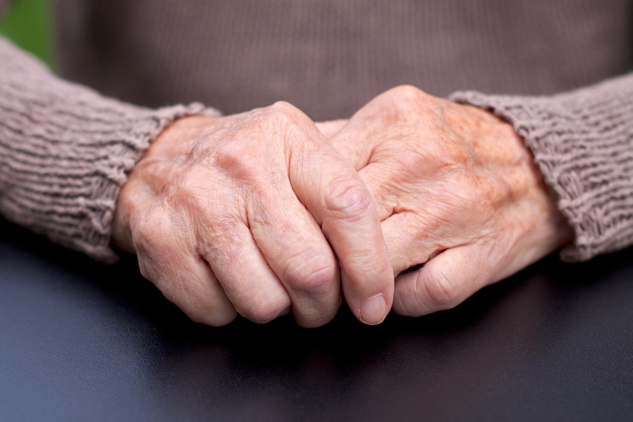 artrosis sintomas manos tratamiento