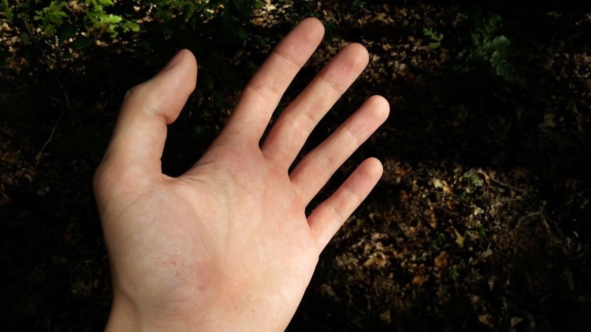 hormigueo extremidades