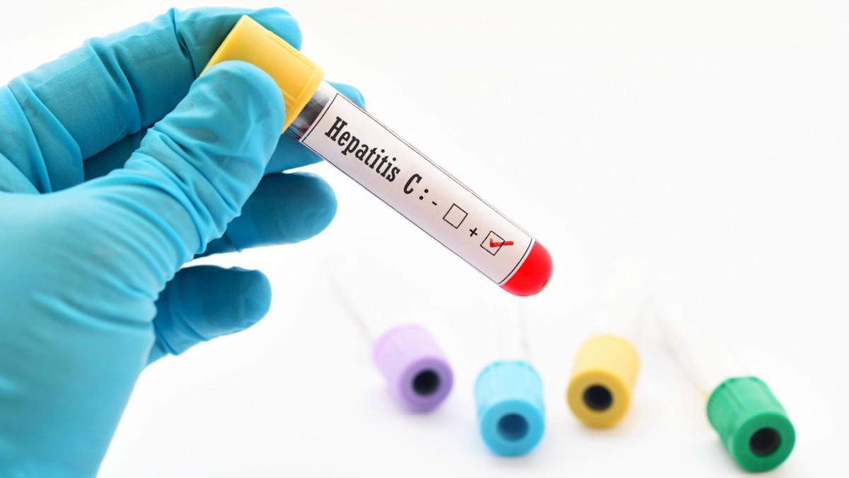 La detección temprana de la hepatitis C es fundamental para su curación.