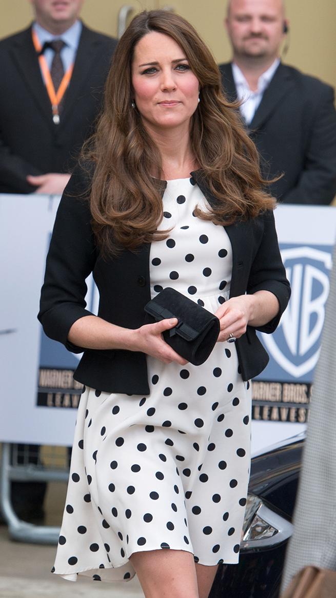 Kate Middleton lunares