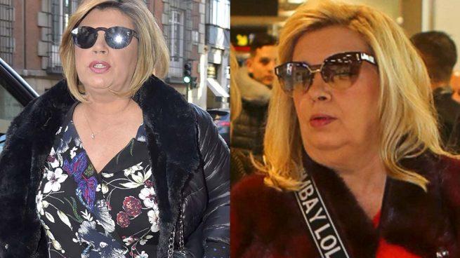 Las Campos llegan tarde: Estas son las otras famosas que televisaron sus retoques estéticos