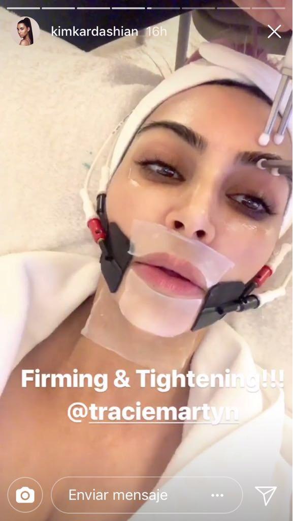 Kim Kardashian tratamiento de belleza