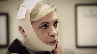 La recuperación de Carmen Borrego tras su liposucción de papada/ Mediaset