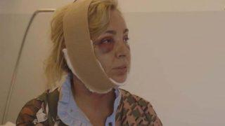 Las primeras imágenes de Carmen Borrego tras su operación de estética/ Telecinco