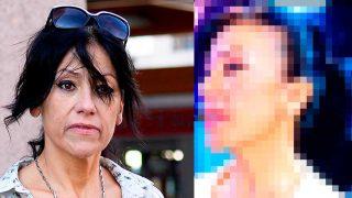 Maite Galdeano, antes y después / Gtres-Telecinco