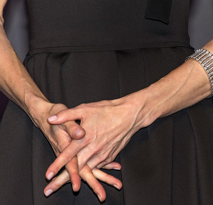 Letizia y sus manos envejecidas