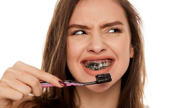 Carbón activado para blanquear los dientes: ¿es efectivo? ¿y peligroso?