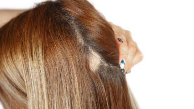 alopecia por tracción