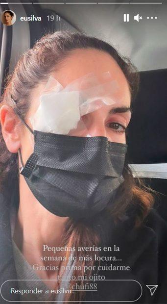 Eugenia Silva ha aparecido con un ojo vendado / Instagram