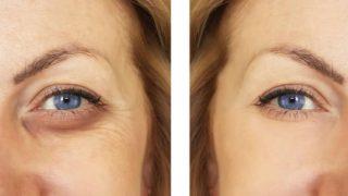 De qué modo podemos cuidar el contorno de ojos de forma casera