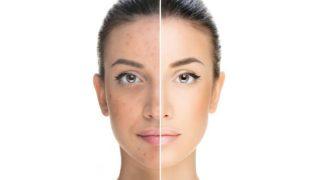 Qué causa tener una cara más oscura que el resto del cuerpo