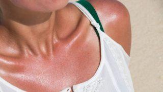 Cómo aliviar y curar las quemaduras solares con bicarbonato