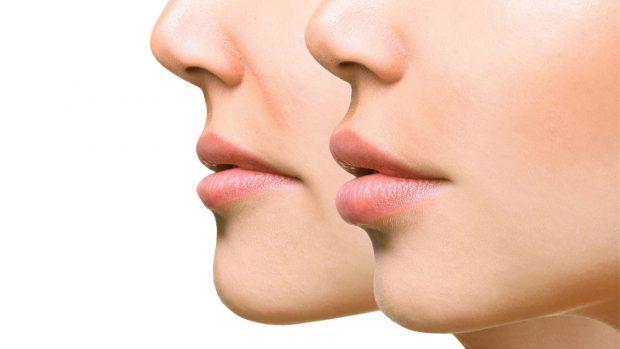 Gracias a un tratamiento de láser se pueden eliminar las arrugas del labio superior./Arques Clinic